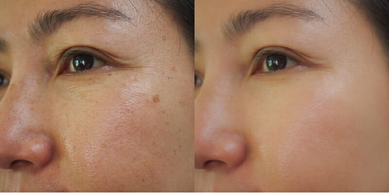 Profhilo Face Eye Before and After
