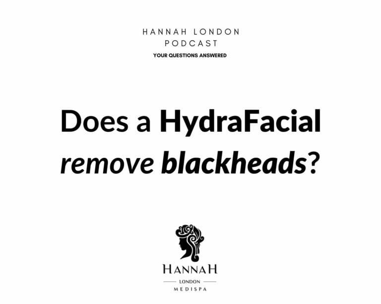 Does a HydraFacial remove blackheads?