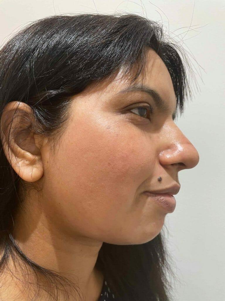 Skin-Peels-London-Cosmelan-Depigmentation-Peel-after