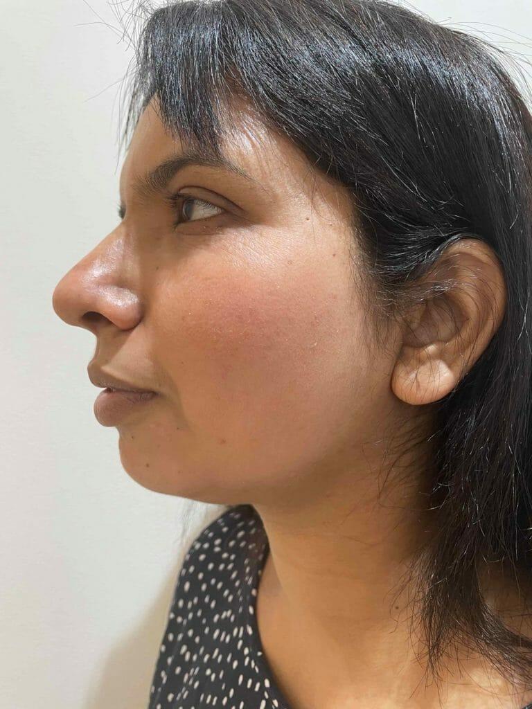 Skin-Peels-London-Cosmelan-Depigmentation-Peel-after right cheek