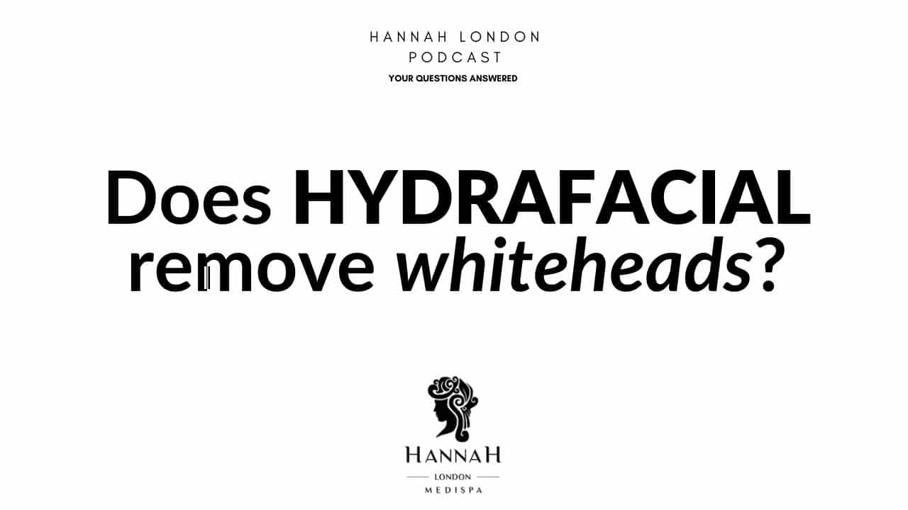 Does hydrafacial remove whiteheads
