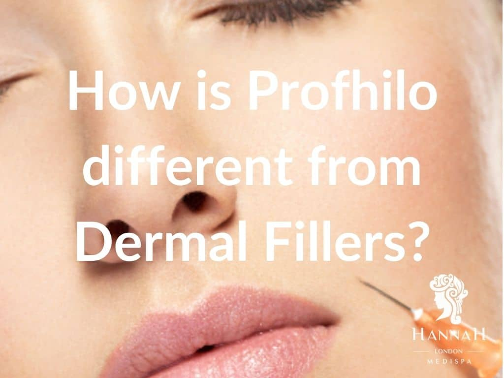 How is Profhilo different from Dermal Fillers
